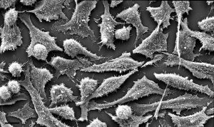 Micrograph of cultured HeLa cells